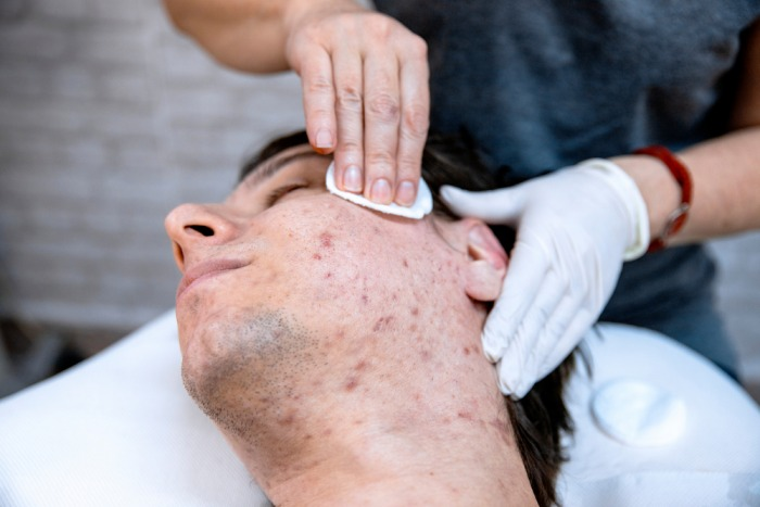 Cystic Acne Treatment at home naturally