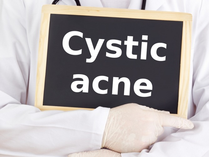 Cystic acne treament medicines and tips at home